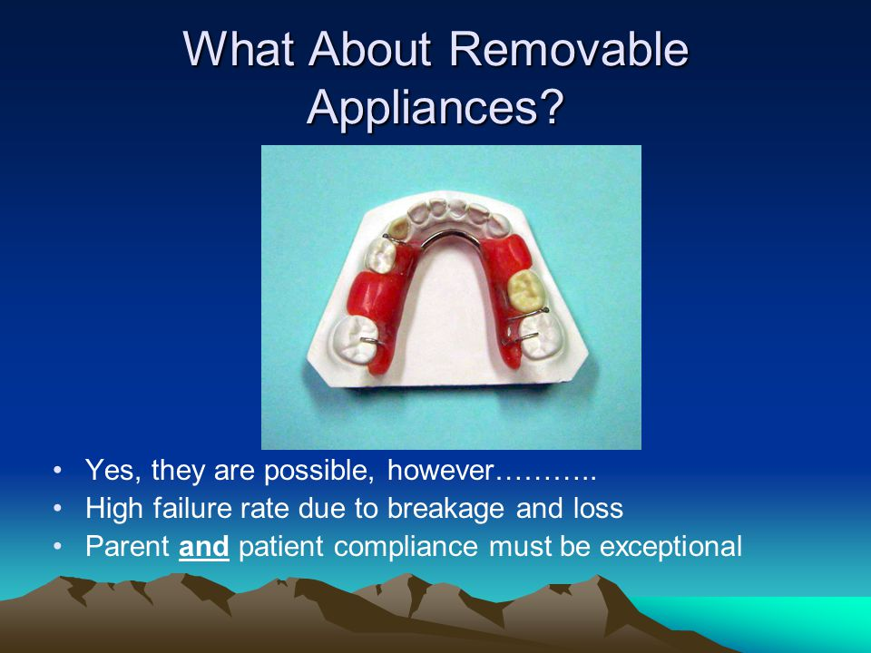 What About Removable Appliances