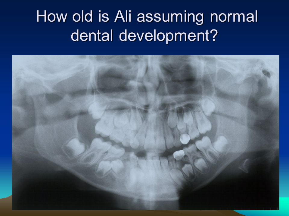 How old is Ali assuming normal dental development