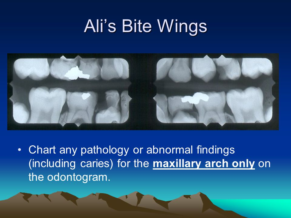 Ali's Bite Wings Chart any pathology or abnormal findings (including caries) for the maxillary arch only on the odontogram.