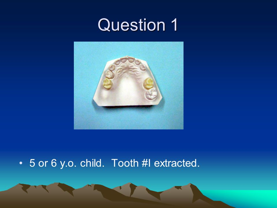 Question 1 5 or 6 y.o. child. Tooth #I extracted.