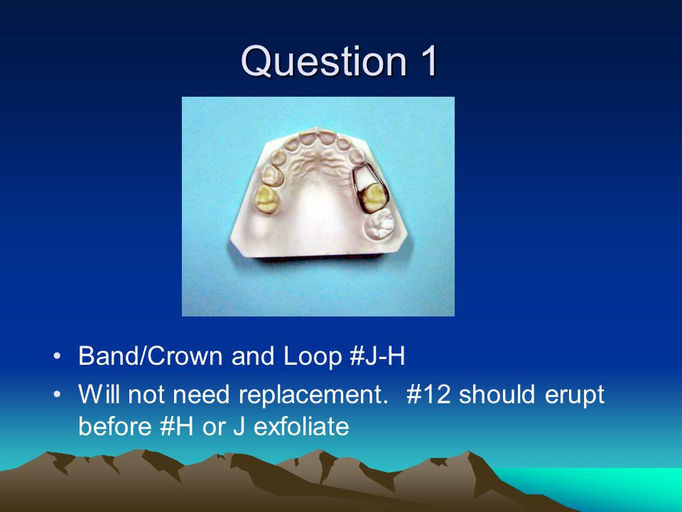Question 1 Band/Crown and Loop #J-H