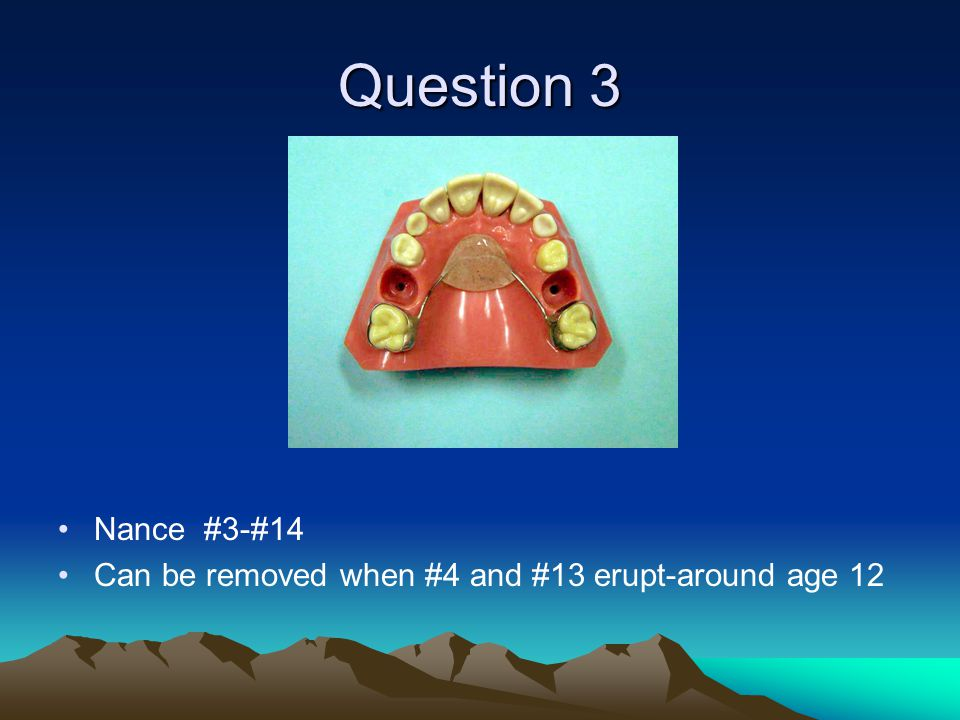 Question 3 Nance #3-#14 Can be removed when #4 and #13 erupt-around age 12