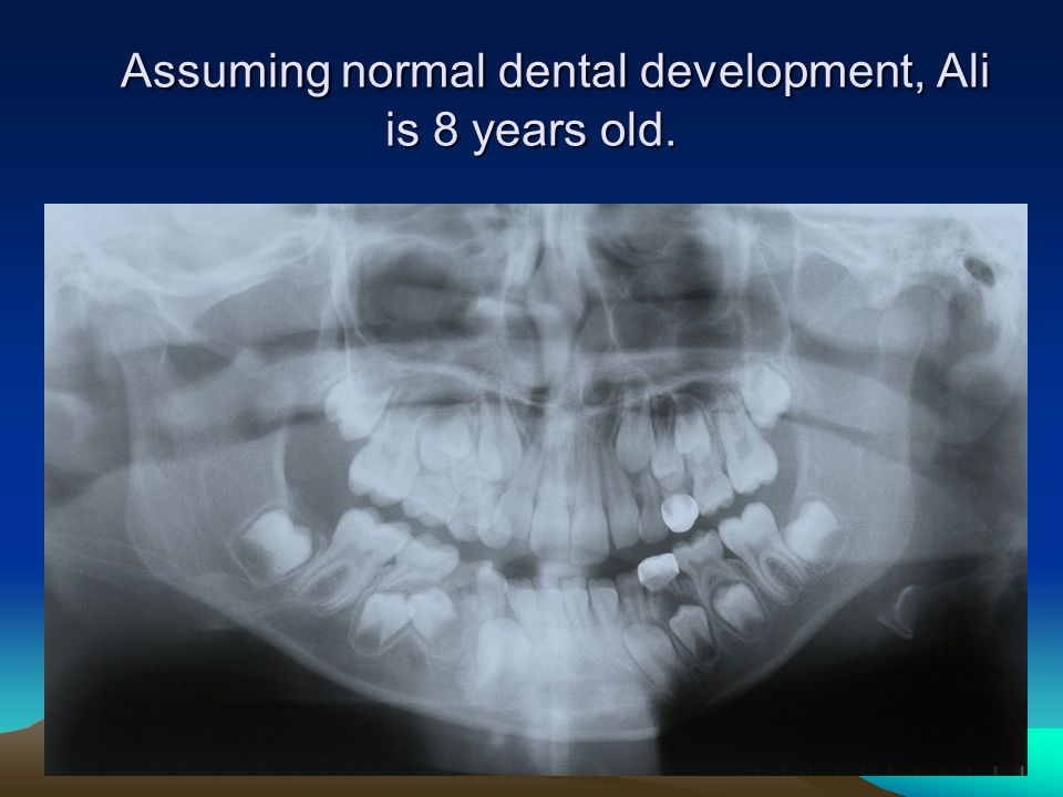 Assuming normal dental development, Ali is 8 years old.