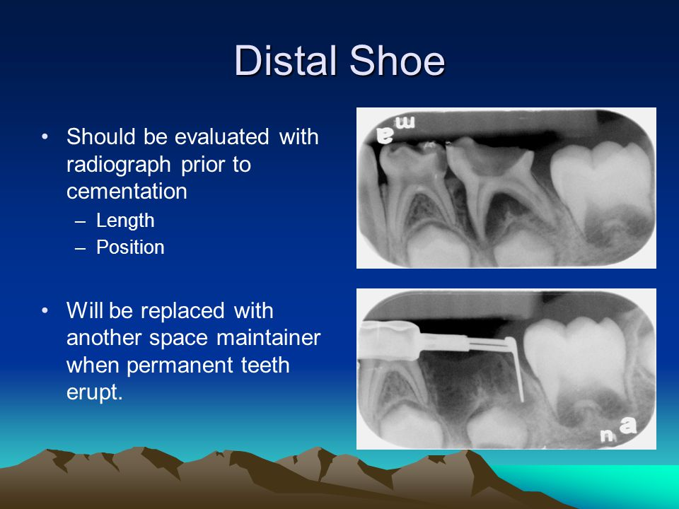 Distal Shoe Should be evaluated with radiograph prior to cementation