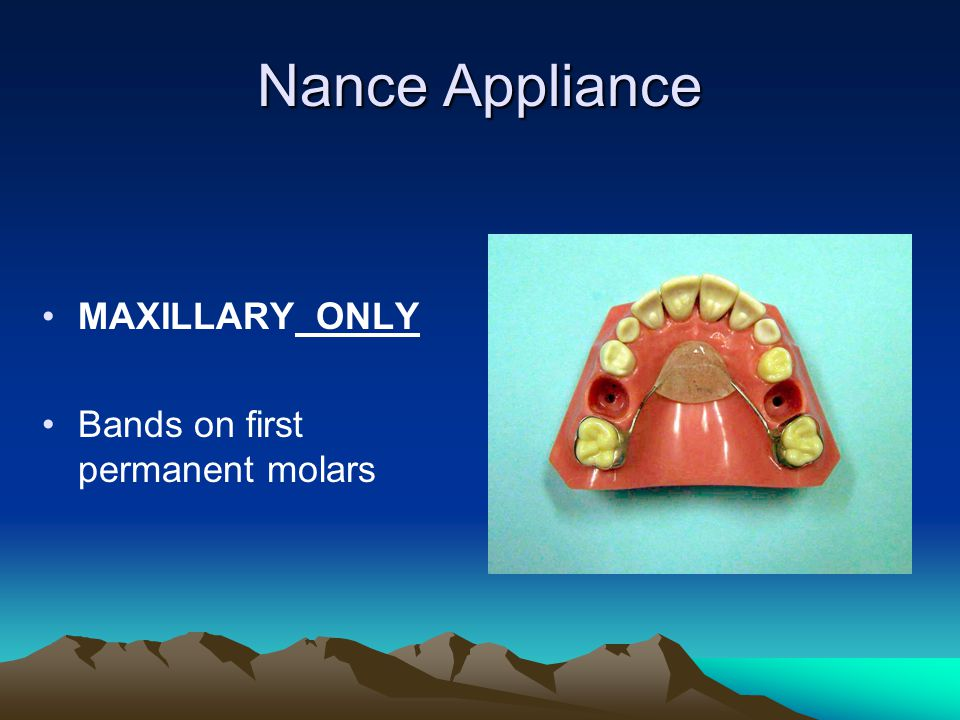 Nance Appliance MAXILLARY ONLY Bands on first permanent molars