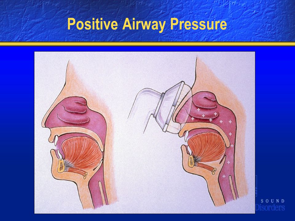 Positive Airway Pressure
