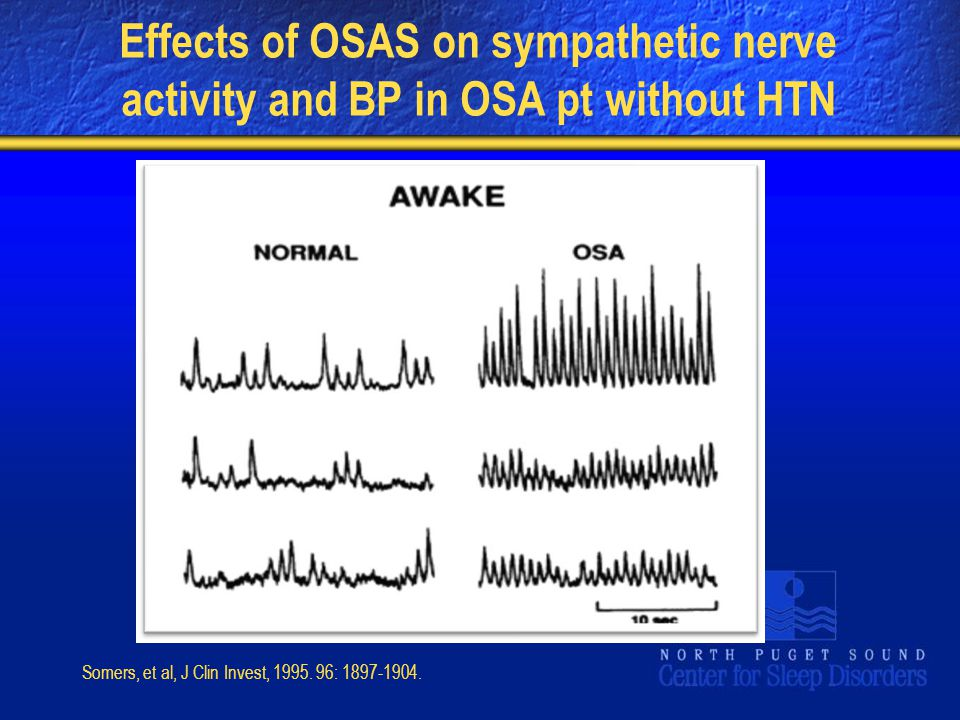 Effects of OSAS on sympathetic nerve activity and BP in OSA pt without HTN