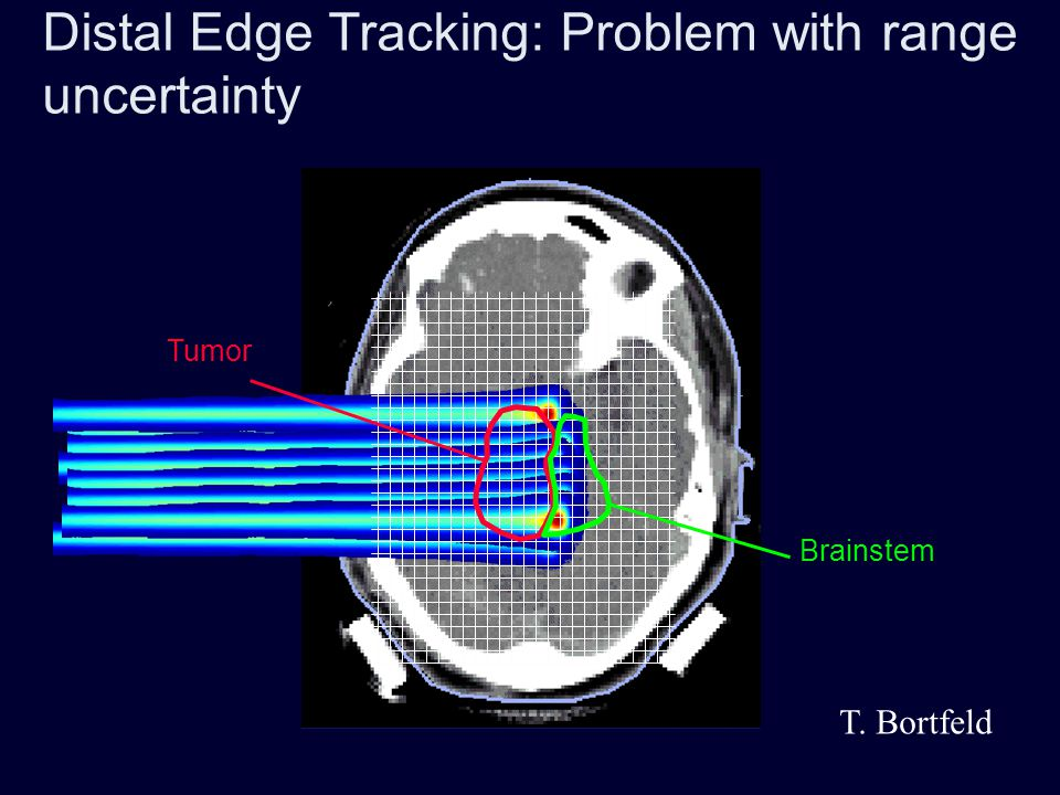 Distal Edge Tracking: Problem with range uncertainty