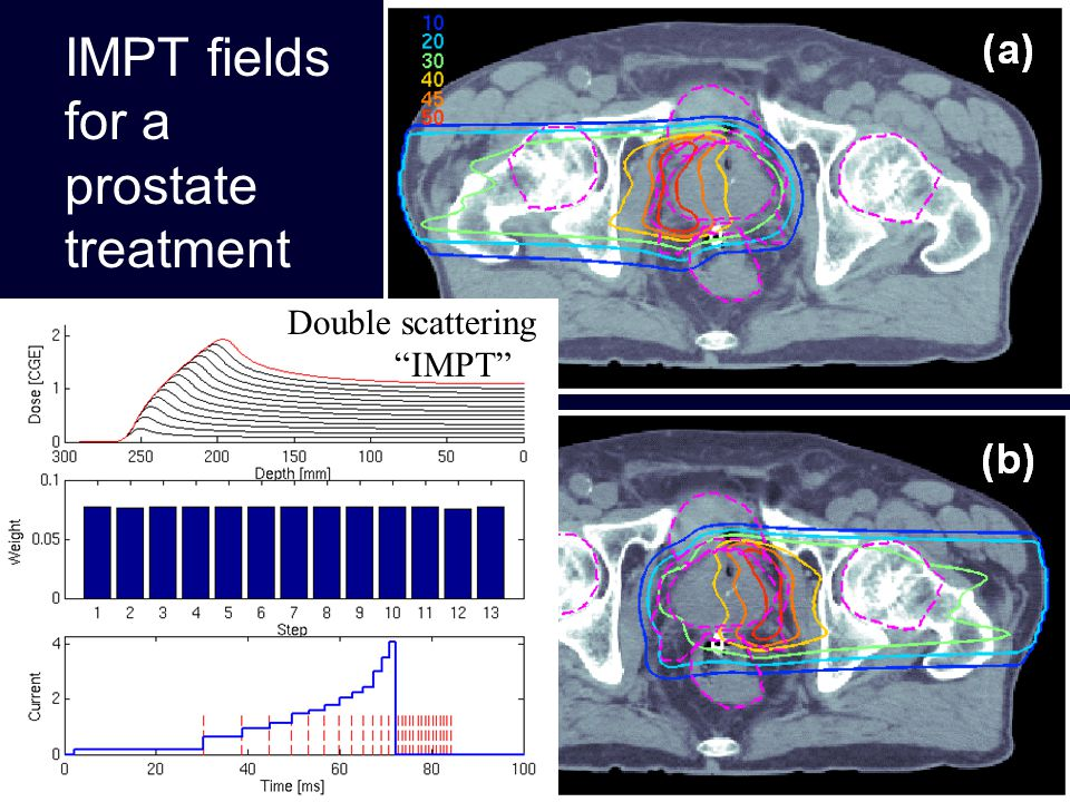IMPT fields for a prostate treatment