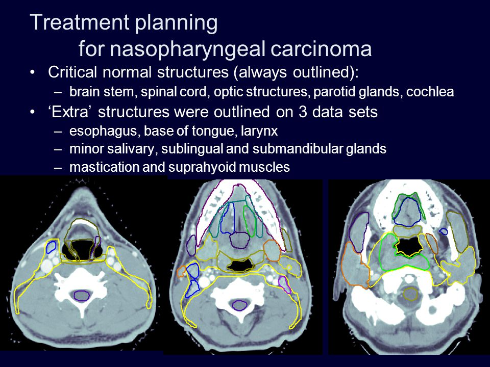 Treatment planning for nasopharyngeal carcinoma