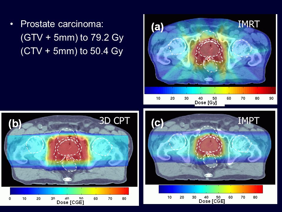 Prostate carcinoma: (GTV + 5mm) to 79.2 Gy (CTV + 5mm) to 50.4 Gy IMRT 3D CPT IMPT