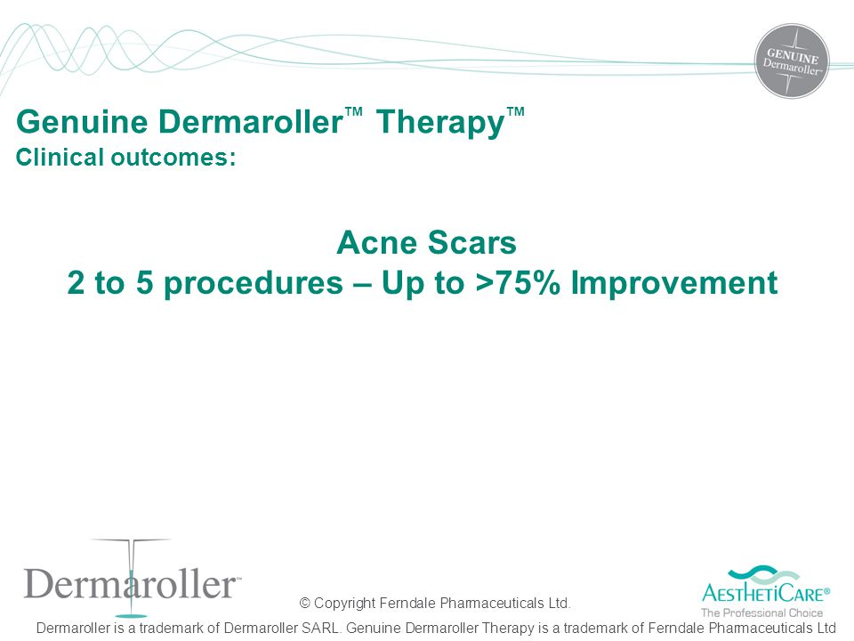 Acne Scars 2 to 5 procedures – Up to >75% Improvement