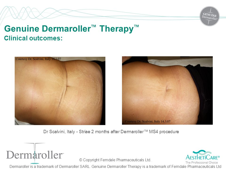 Dr Scalvini, Italy - Striae 2 months after Dermaroller™ MS4 procedure