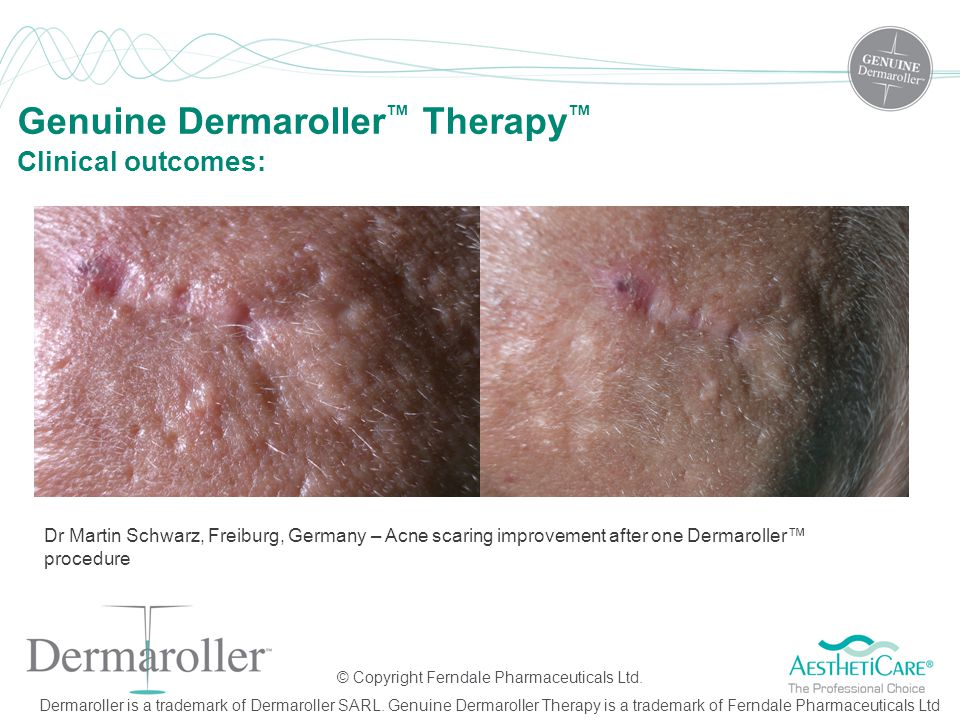 Genuine Dermaroller™ Therapy™ Clinical outcomes: