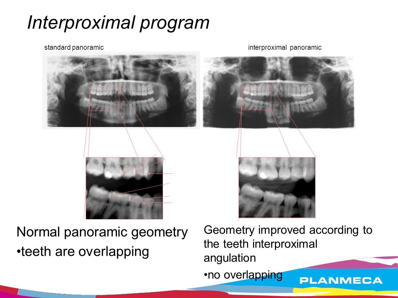 Interproximal program