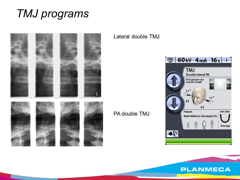 TMJ programs Lateral double TMJ PA double TMJ