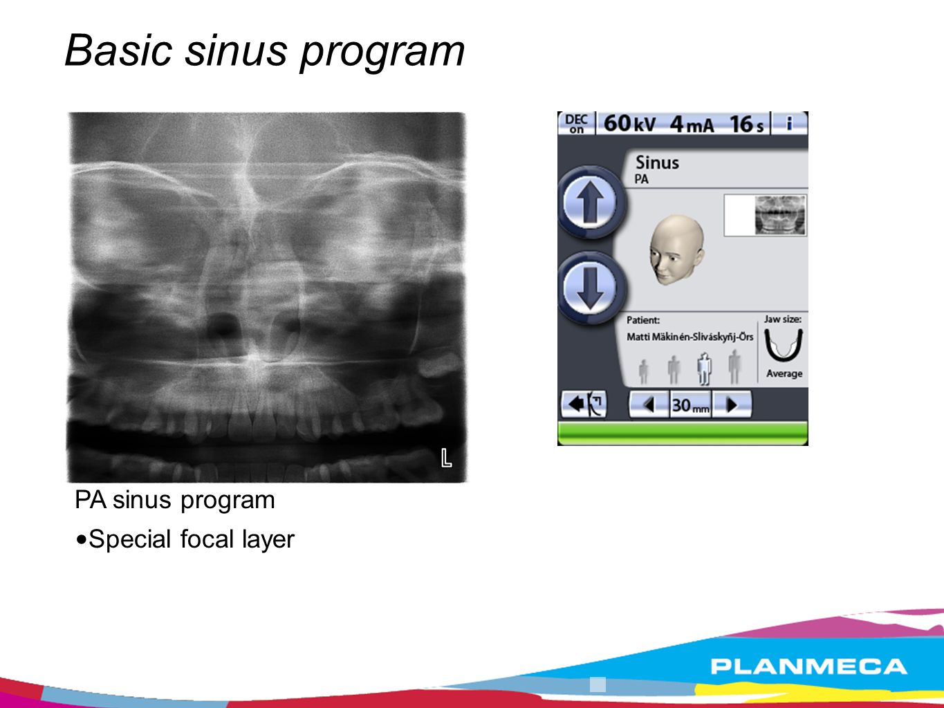 Basic sinus program PA sinus program Special focal layer