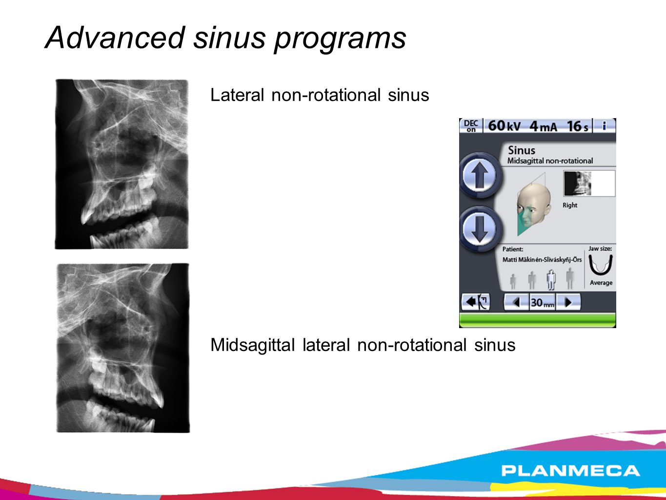 Advanced sinus programs