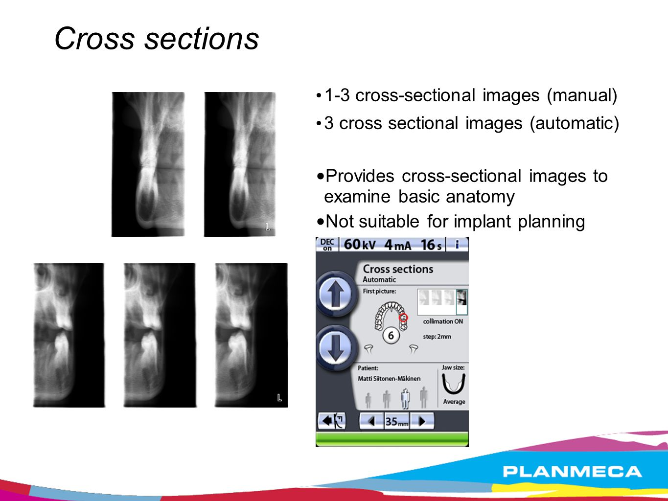 Cross sections 1-3 cross-sectional images (manual)‏ 3 cross sectional images (automatic)‏ Provides cross-sectional images to examine basic anatomy.