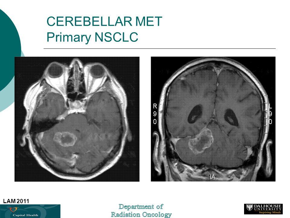 CEREBELLAR MET Primary NSCLC