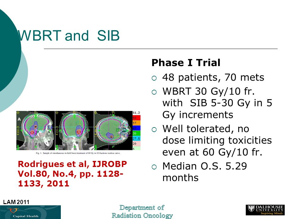WBRT and SIB Phase I Trial 48 patients, 70 mets