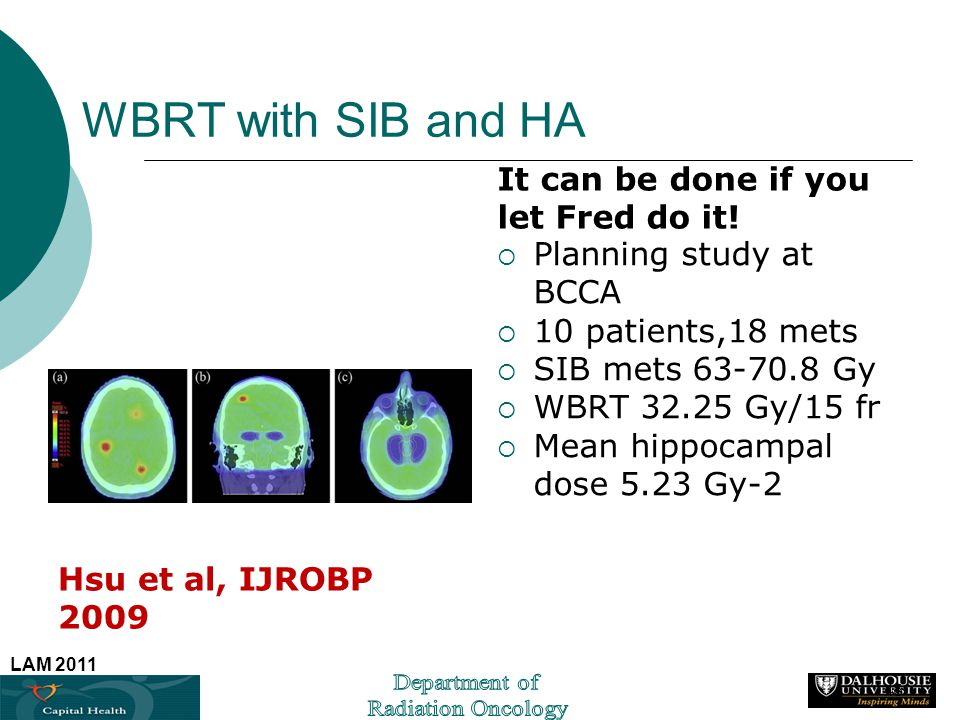 WBRT with SIB and HA It can be done if you let Fred do it!