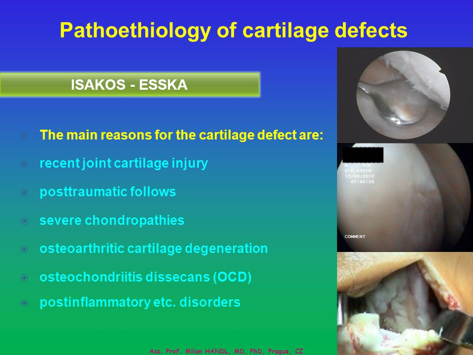 Pathoethiology of cartilage defects