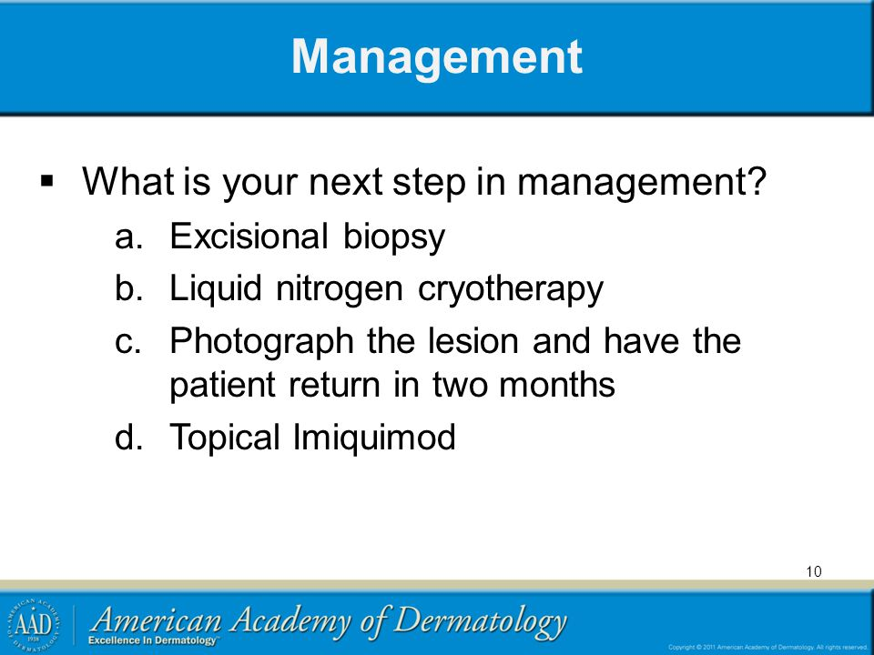 Management What is your next step in management Excisional biopsy