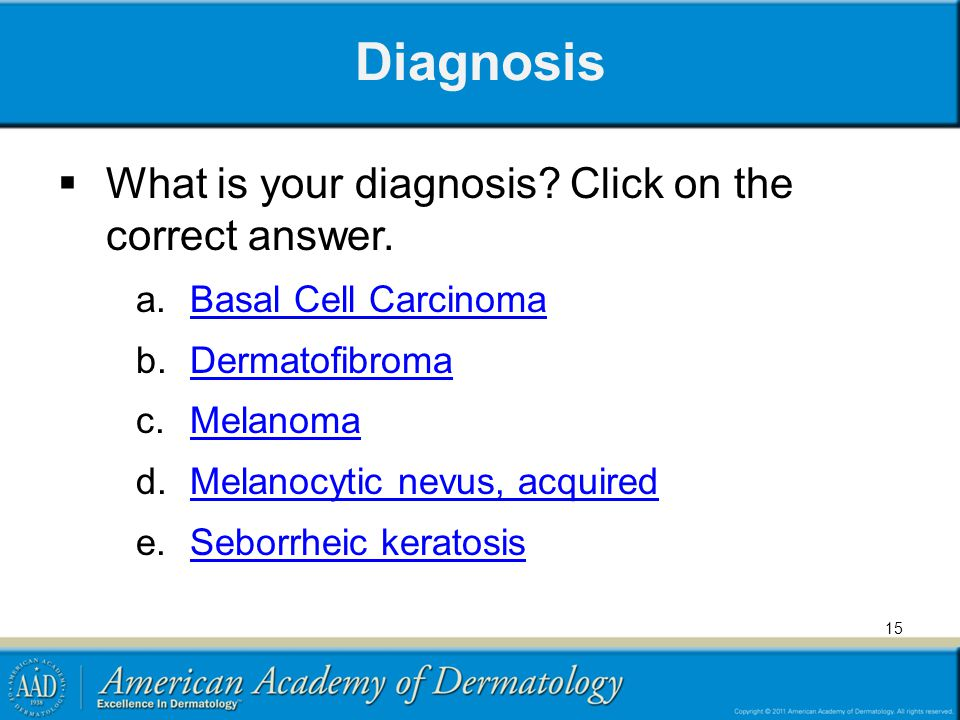 Diagnosis What is your diagnosis Click on the correct answer.