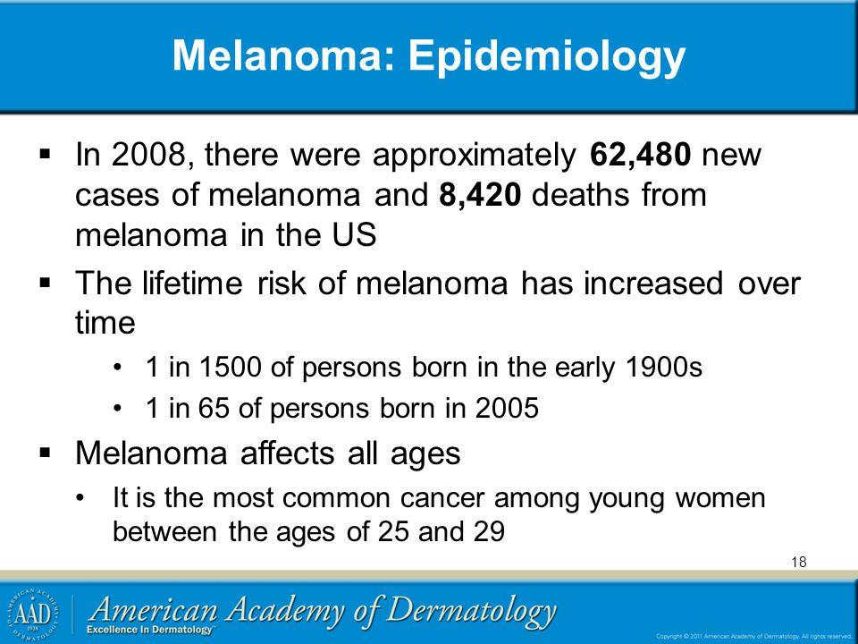 Melanoma: Epidemiology