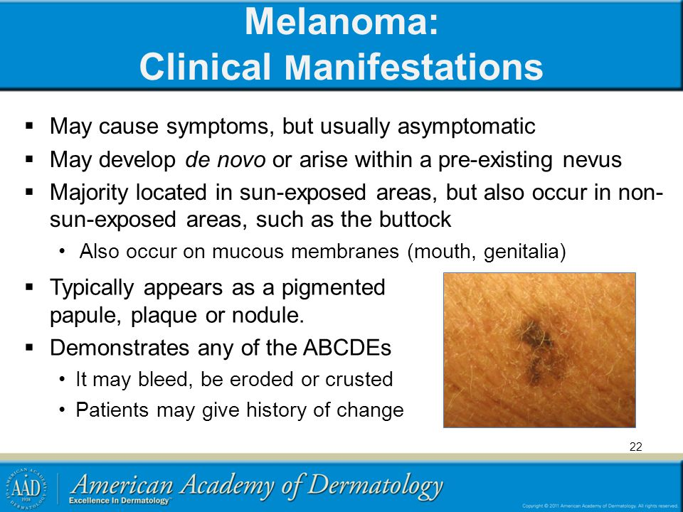 Melanoma: Clinical Manifestations
