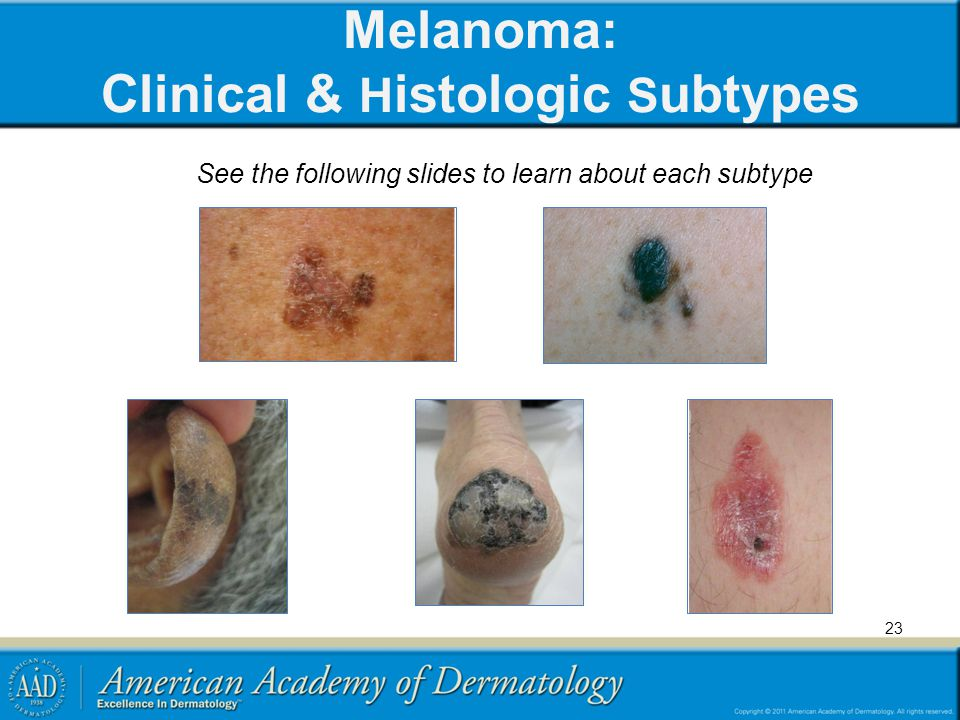 Melanoma: Clinical & Histologic Subtypes