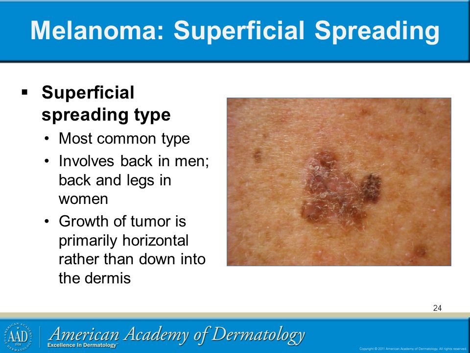 Melanoma: Superficial Spreading