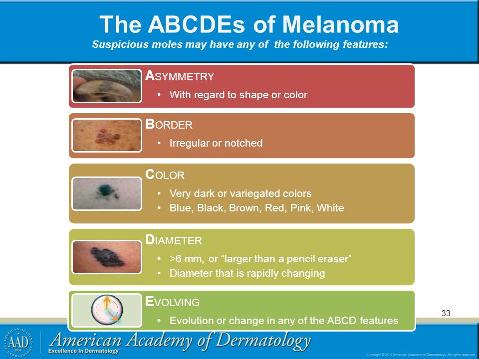 The ABCDEs of Melanoma Suspicious moles may have any of the following features: