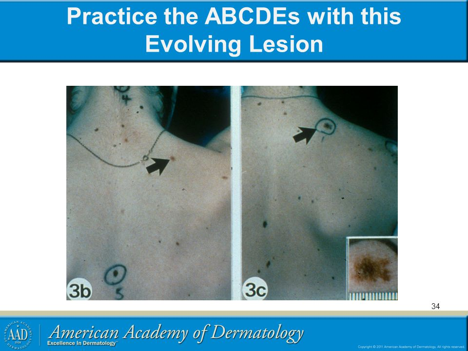 Practice the ABCDEs with this Evolving Lesion