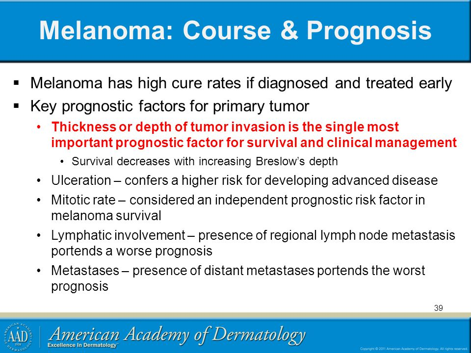 Melanoma: Course & Prognosis
