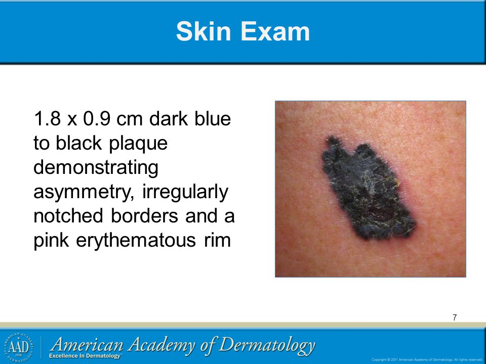 Skin Exam 1.8 x 0.9 cm dark blue to black plaque demonstrating asymmetry, irregularly notched borders and a pink erythematous rim.