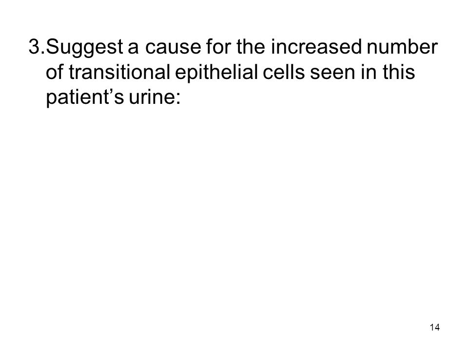 3. Suggest a cause for the increased number of transitional epithelial cells seen in this patient's urine: