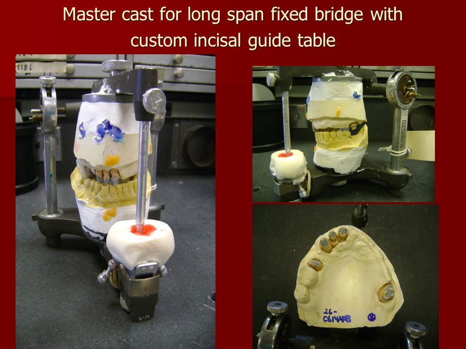 Master cast for long span fixed bridge with custom incisal guide table