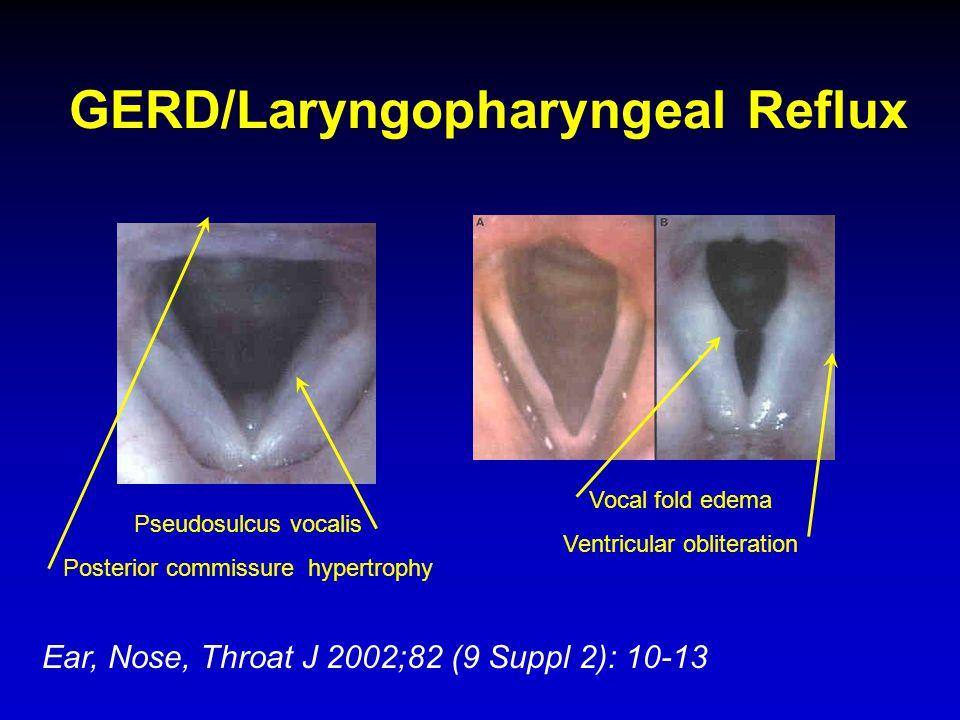 GERD/Laryngopharyngeal Reflux