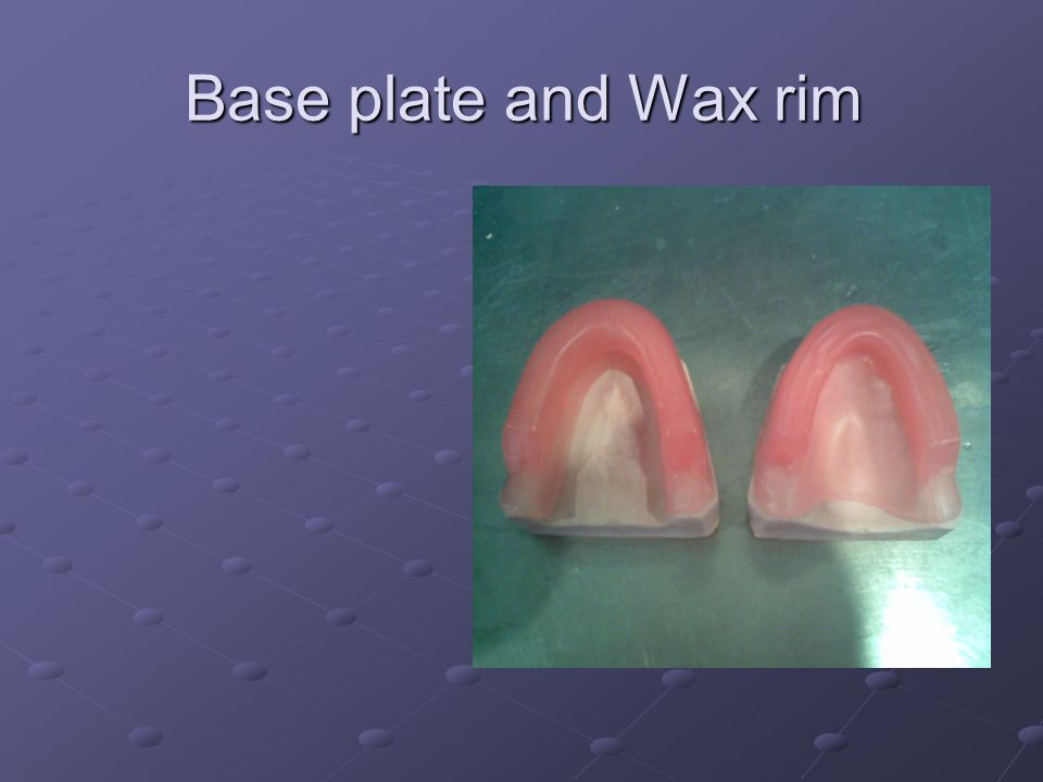 Base plate and Wax rim