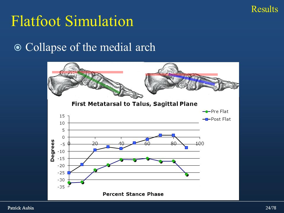 Results Flatfoot Simulation Collapse of the medial arch