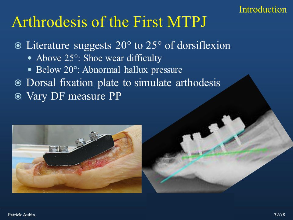 Arthrodesis of the First MTPJ