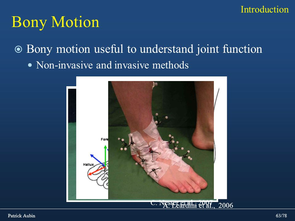 Bony Motion Bony motion useful to understand joint function