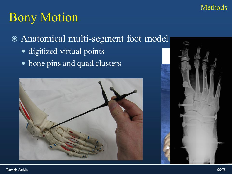Bony Motion Anatomical multi-segment foot model