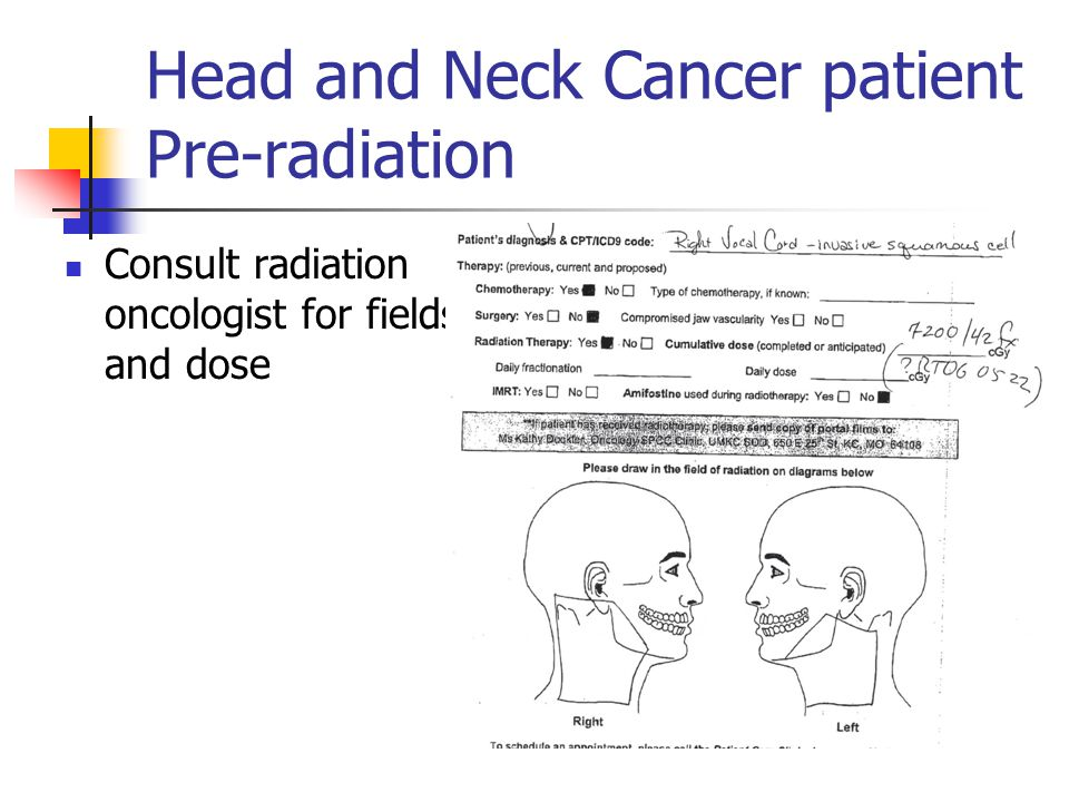 Head and Neck Cancer patient Pre-radiation