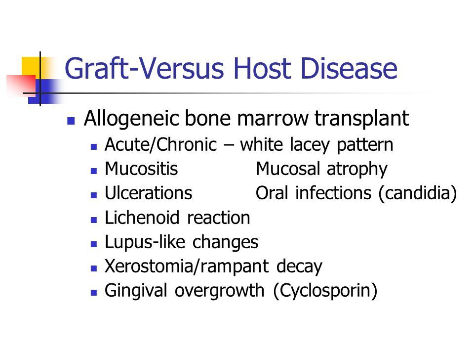 Graft-Versus Host Disease