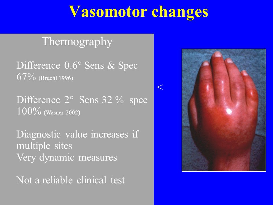 Vasomotor changes Thermography Colour – red, cyanotic or pale
