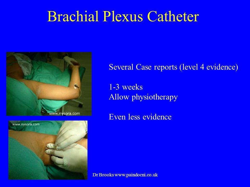 Brachial Plexus Catheter