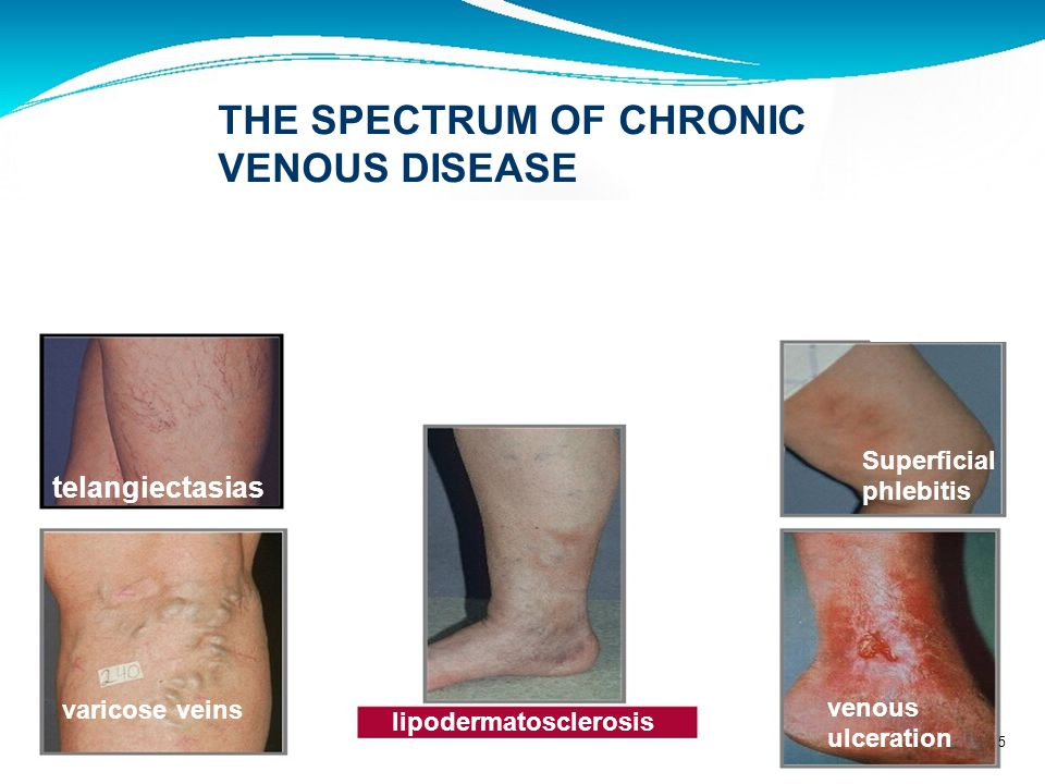 THE SPECTRUM OF CHRONIC VENOUS DISEASE